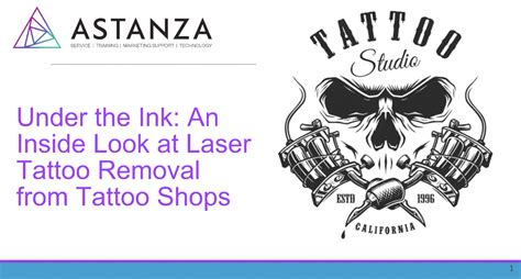 tattoo removal investment laser removal learning center