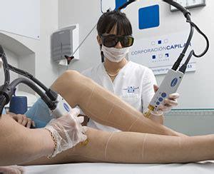 Imagenes Depilacion Ingles Brasileñas | los riesgos del depilado l 225 ser elmundo es salud
