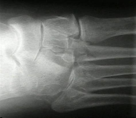 bunk bed fracture wheeless textbook of orthopaedics