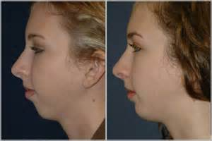 Augmentation by Gallery For Gt Chin Implant Before And After