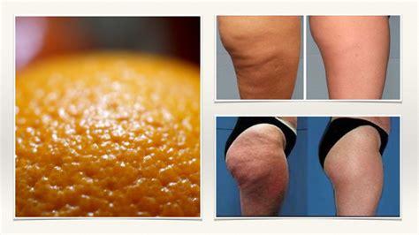 cellulite best treatment dr oz cellulite treatment 2016 2017 dr oz cellulite