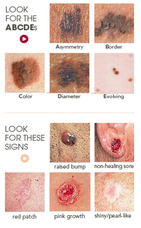 do tanning beds cause skin cancer skin cancer diagnosis and treatment midwest dermatology