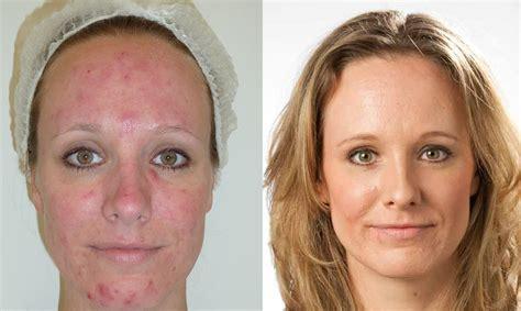 Masker Botox By Dewa Kosmetik gezichtsbehandelingen lassana nl