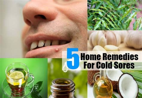 5 cold sores home remedies treatments and cure