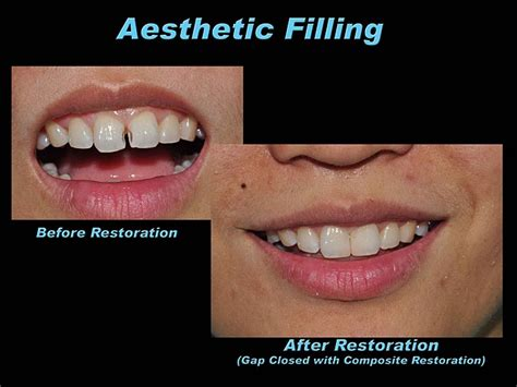 composite resin aesthetic white filling 171 prestige dental care