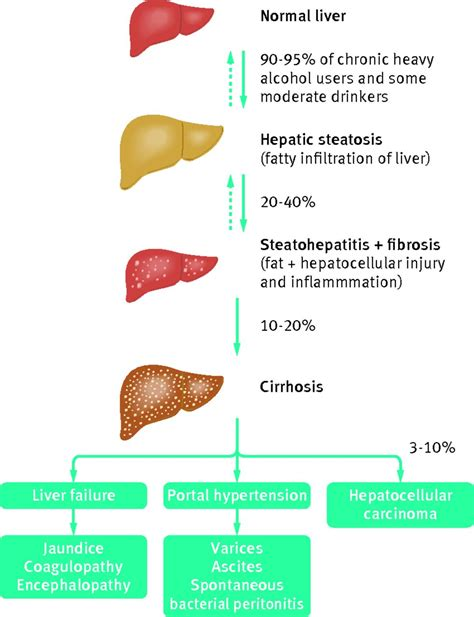 Stewart Has Liver Disease 2 by Decompensated Related Liver Disease Acute