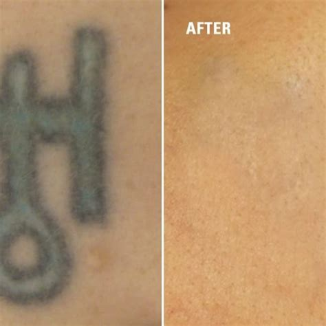 lotion to remove tattoos removal before and after how to get rid of