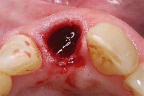wann essen nach zahnextraktion implantation in der 228 sthetisch sensiblen zone zm