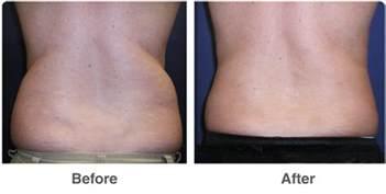 vorher nachher fettabsaugung vaser ultrasound liposuction las vegas contouring