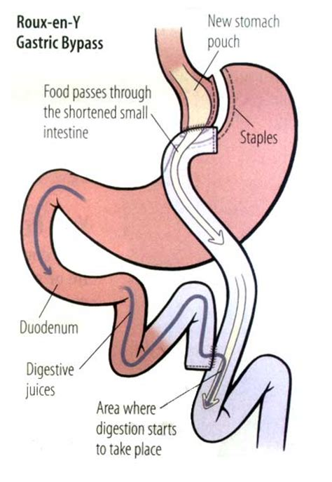 gastric bypass diagram 6 best images of bypass surgery diagram gastric bypass