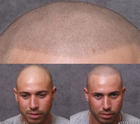 tattoo hair cost bald guys find interesting way to deal with lack of hair