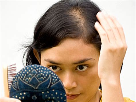 woman with extremely thinning hair the fringe with ferricchia fyi healthy hair starts with