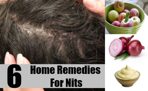 6 home remedies for nits how to get rid of nits diy