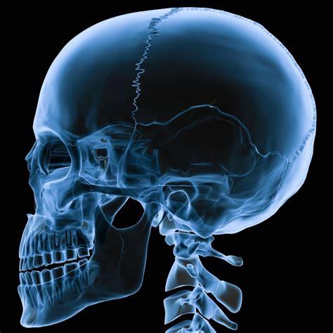 imagenes de rayos x animadas t 233 cnicas diagn 243 sticas los rayos x