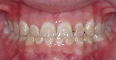 with braces pink easy braces brush easybracesbrush