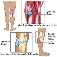 Knee L Aw 5 baker s cyst is a fluid filled cyst that leads to a bulge and degree of tightness your