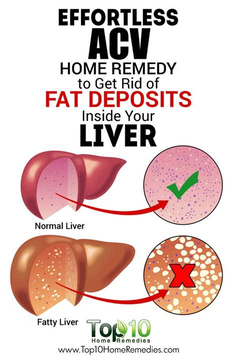 25 best ideas about fatty liver on healthy