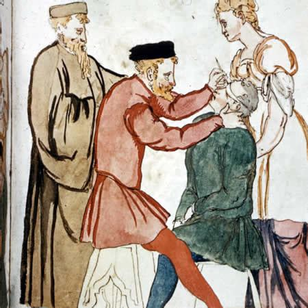 couching cataract 10 excruciating medical treatments from the middle ages