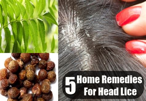 lice home remedies treatments and cures usa uk