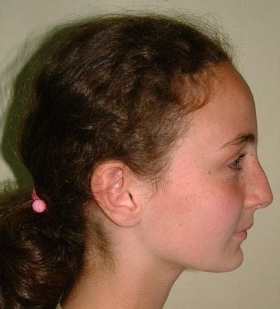 best haircut for recessed chin curly hair 2 convex profile has a receding forehead and chin the