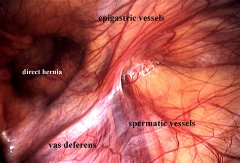 inguinal hernia hernia as related to inguinal hernia pictures