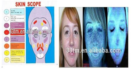wood l skin analysis wood l skin analyzer buy wood l skin