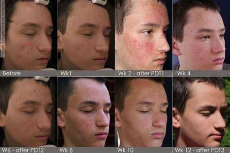 3 photodynamic therapy for acne philadelphia robert photodynamic therapy for acne philadelphia pulse dye