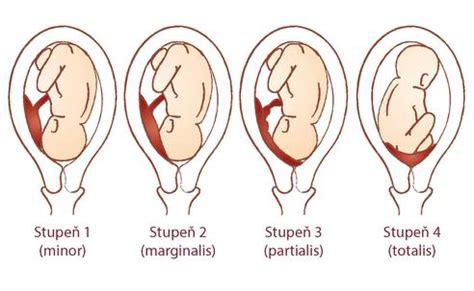 plazenta praevia totalis wann kaiserschnitt placenta praevia