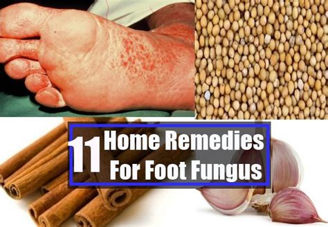 home remedies for foot fungus foot fungus home remedies treatments and cure