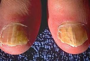 ringworm of the nails picture image on medicinenet com