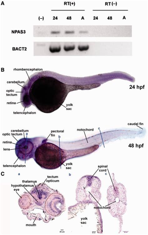 pattern analysis brain expression of the npas3 gene during zebrafish developme