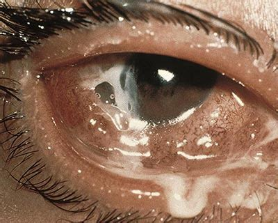 can you get pink eye from a conjunctivitis what is pink eye american academy of ophthalmology