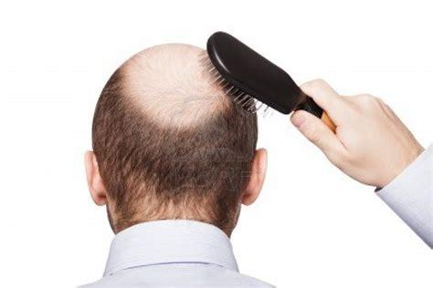 botak hair cara menumbuhkan rambut pada botak permanen cara