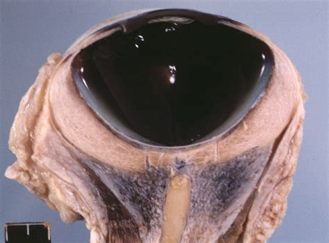 whale eye eye of goosebeak whale