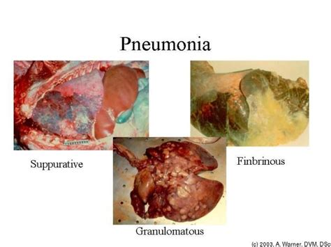 Can Detoxing Quickly Cause Pneumonia by 17 Best Images About Pneumonia On Pneumonia