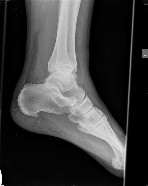 Printable X Rays | the broken ankle post needham family dot net