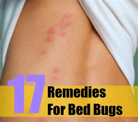 remedies for bed bug bites top 17 herbal remedies for bed bugs various herbal
