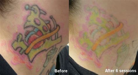 neck tattoo removal 68 best removal images on