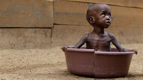 imagenes niños de africa malnutrici 243 n se apodera de 1 mill 243 n de ni 241 os en 193 frica