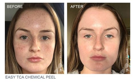 Paket Chemical Soft Peel Acne tca chemical peel award winning the laser and skin clinic
