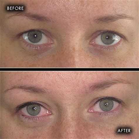 tattoo removal northern ireland before and after photographs semi permanent make up