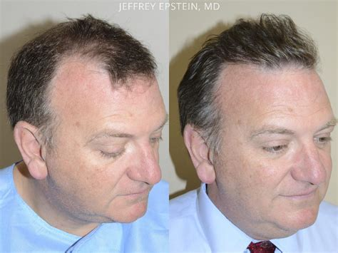hair transplant center nyc hair transplantations nyc hair transplants for men before and after photos hair