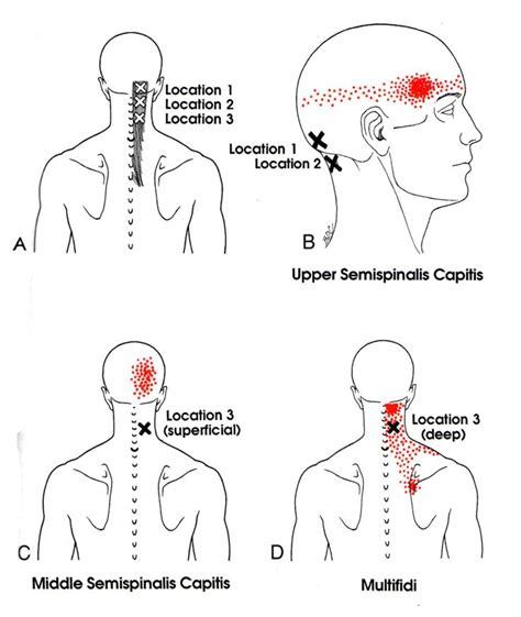 pressure points fibromyalgia diagram semispinalis capitis the trigger point referred