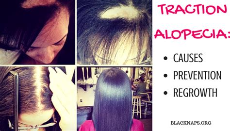 best hairstyles dor traction alopecia all about traction alopecia