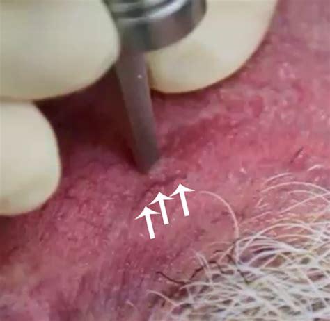 laser diode kulit laser diode 577 in dokterkulitku