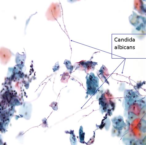 pap test metaplasia organisms seen in cervical cytology eurocytology