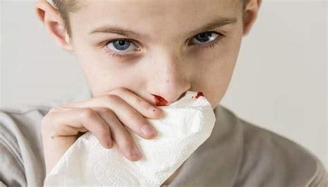 cortar hemorragia nasal c 243 mo detener las hemorragias nasales 15 m 233 todos para hacerlo