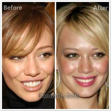 Next Facelift For Your Teeth 2 by Cosmetic Surgery