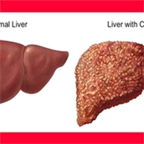 alimentazione per cirrosi epatica sintomi ernia addominale dolori di pancia ernia