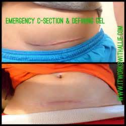 c section wrap best 20 defining gel ideas on pinterest it works